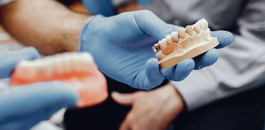 Frågor och svar om tandimplantat